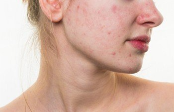 Acne or Pimple Marks